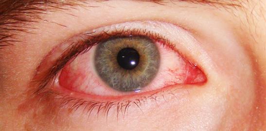 czerwone_oko